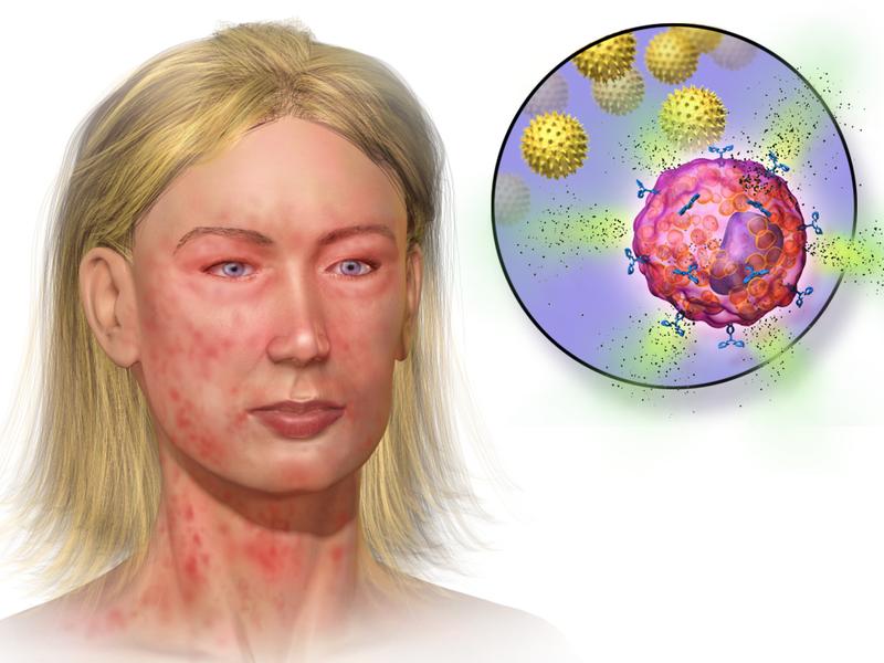 donde se encuentra la histamina en el cuerpo